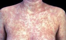 Zührevi Hastalıklar Sifiliz (Frengi)