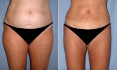 Liposuction hakkında merak edilenler