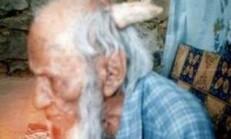 Tıp Çare Bulamıyor…Boynuzlu İnsanlar Görenleri Hayrete Düşürüyor