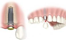 Diş İmplant Nedir ve Nasıl Yapılır?