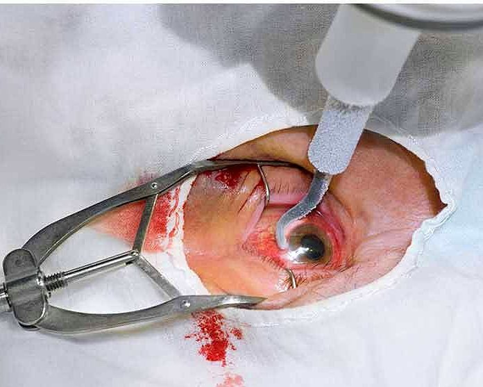 Carol Wehier 1998 yılında sağ gözünü aldırdığı ameliyat