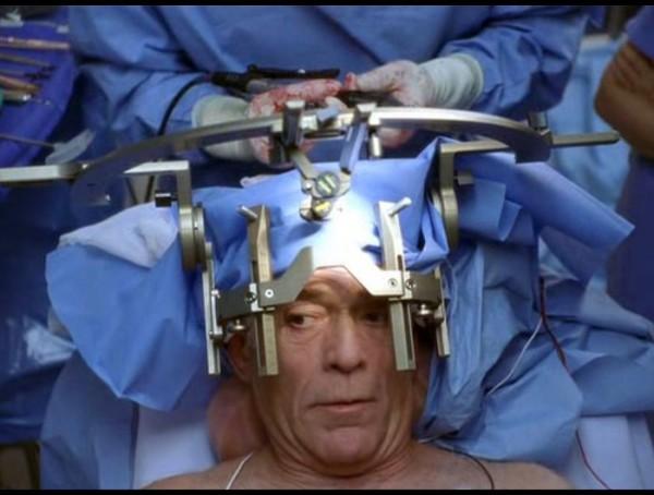 Опухоль головного мозга последствия после операции