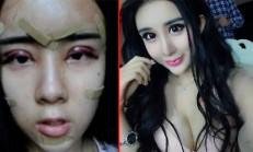 15 Yaşındaki Kızın 'Aşk Yüzünden' Estetik Ameliyatı Onu Bu Hale Getirdi