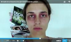 Bir Kadın Bir Yıl Boyunca Her Gün Kendi Fotoğrafını Çekiyor. Gittikçe Artan Aile İçi Şiddetin Fotoğraflarını Göreceksiniz